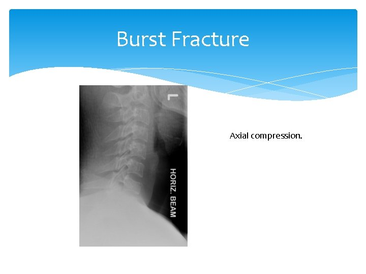 Burst Fracture Axial compression.