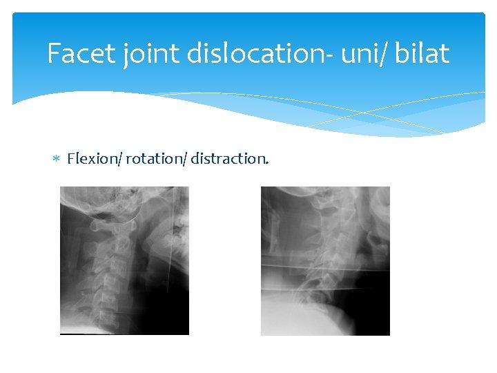 Facet joint dislocation- uni/ bilat Flexion/ rotation/ distraction.