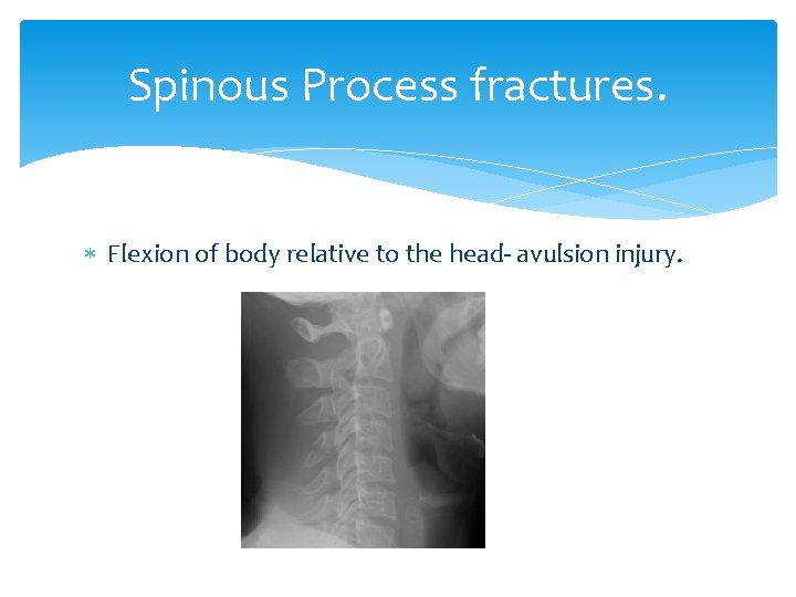 Spinous Process fractures. Flexion of body relative to the head- avulsion injury.