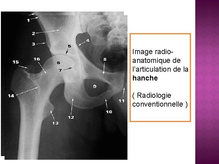 Image radioanatomique de l'articulation de la hanche ( Radiologie conventionnelle )
