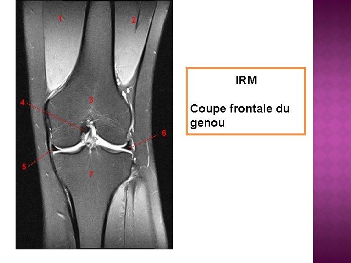 IRM Coupe frontale du genou