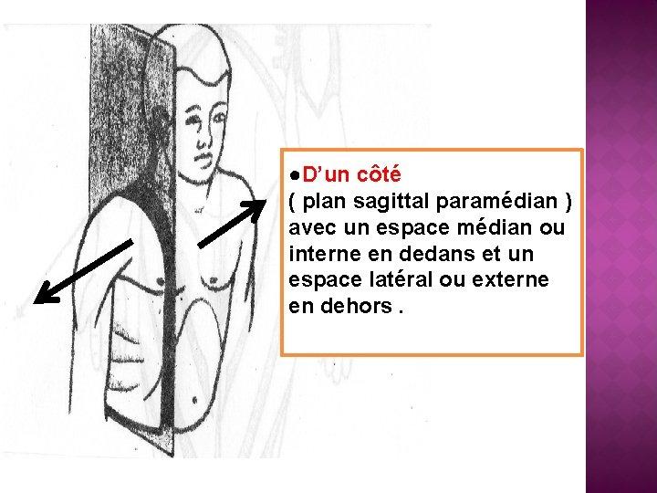 ●D'un côté ( plan sagittal paramédian ) avec un espace médian ou interne en