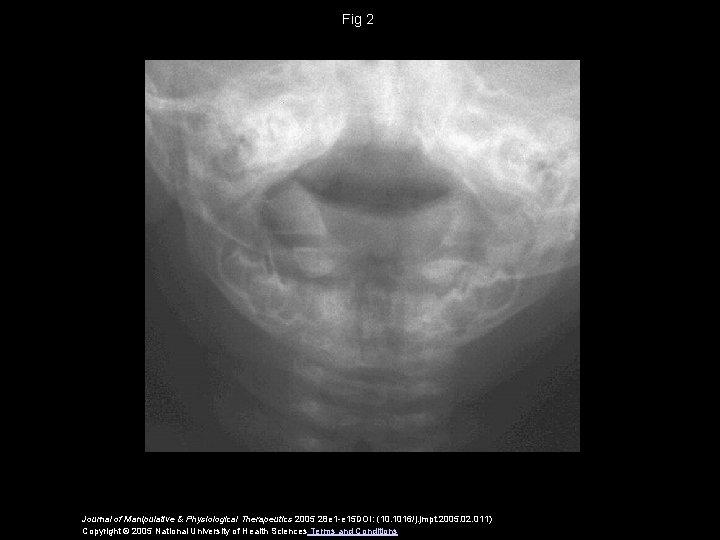 Fig 2 Journal of Manipulative & Physiological Therapeutics 2005 28 e 1 -e 15