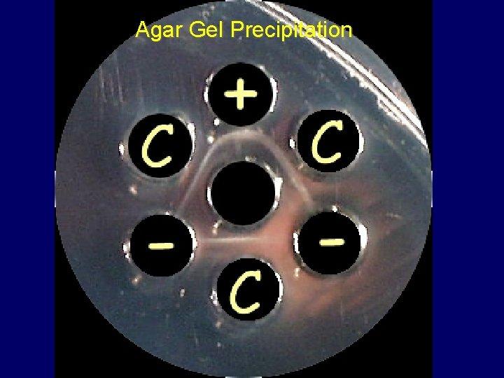 Agar Gel Precipitation