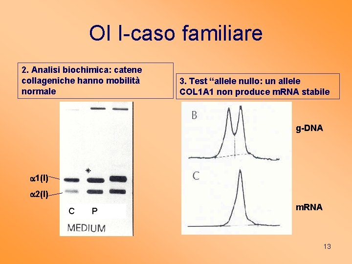 """OI I-caso familiare 2. Analisi biochimica: catene collageniche hanno mobilità normale 3. Test """"allele"""