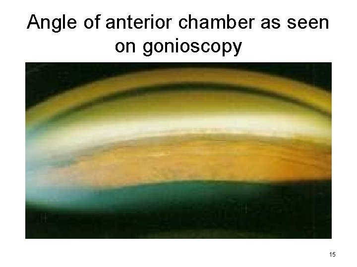 Angle of anterior chamber as seen on gonioscopy 15