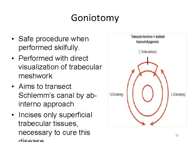 Goniotomy • Safe procedure when performed skilfully. • Performed with direct visualization of trabecular