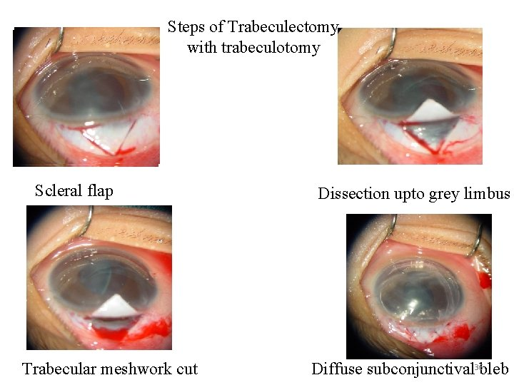 Steps of Trabeculectomy with trabeculotomy Scleral flap Trabecular meshwork cut Ds s. Dissection upto