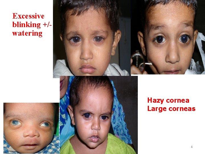 Excessive blinking +/watering Hazy cornea Large corneas 4
