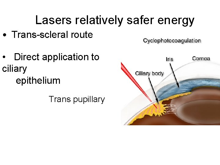 Lasers relatively safer energy • Trans-scleral route • Direct application to ciliary epithelium Trans