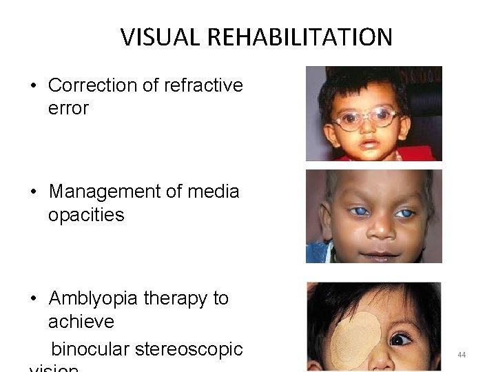 VISUAL REHABILITATION • Correction of refractive error • Management of media opacities • Amblyopia