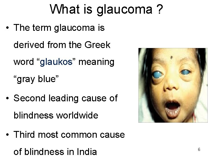 What is glaucoma ? • The term glaucoma is derived from the Greek word
