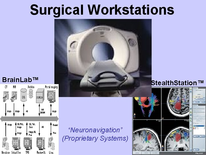 """Surgical Workstations Brain. Lab™ Stealth. Station™ """"Neuronavigation"""" (Proprietary Systems)"""
