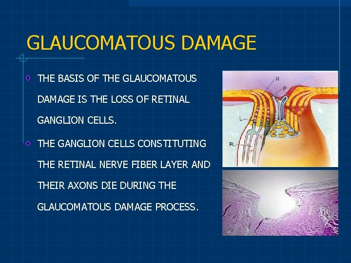 GLAUCOMATOUS DAMAGE THE BASIS OF THE GLAUCOMATOUS DAMAGE IS THE LOSS OF RETINAL GANGLION