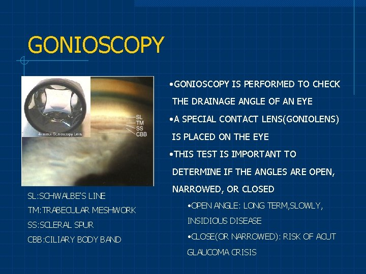 GONIOSCOPY • GONIOSCOPY IS PERFORMED TO CHECK THE DRAINAGE ANGLE OF AN EYE •
