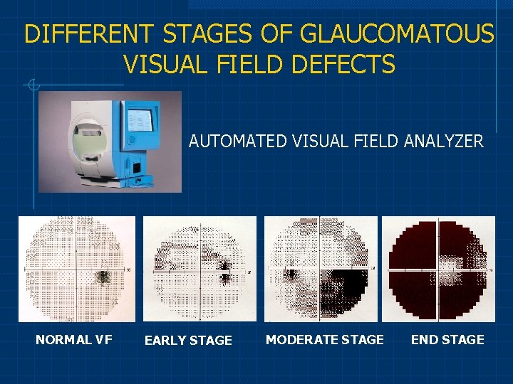 DIFFERENT STAGES OF GLAUCOMATOUS VISUAL FIELD DEFECTS AUTOMATED VISUAL FIELD ANALYZER NORMAL VF EARLY