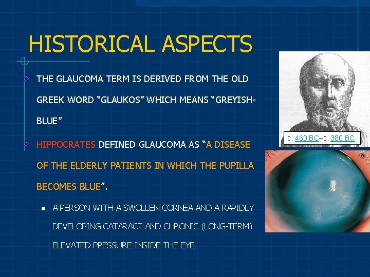 """HISTORICAL ASPECTS THE GLAUCOMA TERM IS DERIVED FROM THE OLD GREEK WORD """"GLAUKOS"""" WHICH"""