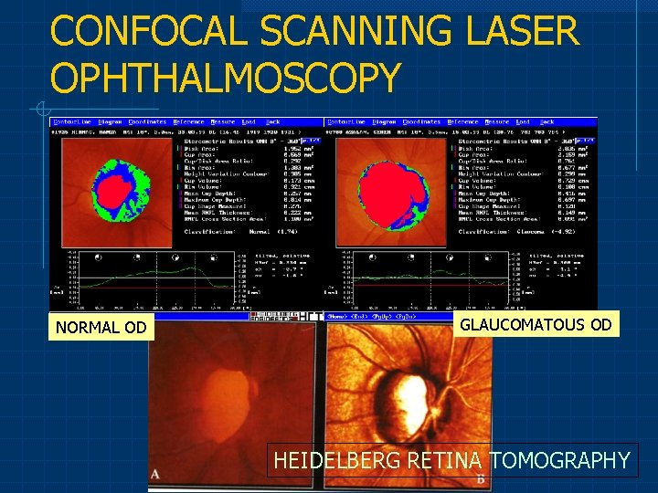 CONFOCAL SCANNING LASER OPHTHALMOSCOPY NORMAL OD GLAUCOMATOUS OD HEIDELBERG RETINA TOMOGRAPHY