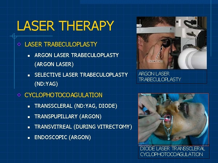 LASER THERAPY LASER TRABECULOPLASTY n ARGON LASER TRABECULOPLASTY (ARGON LASER) n SELECTIVE LASER TRABECULOPLASTY