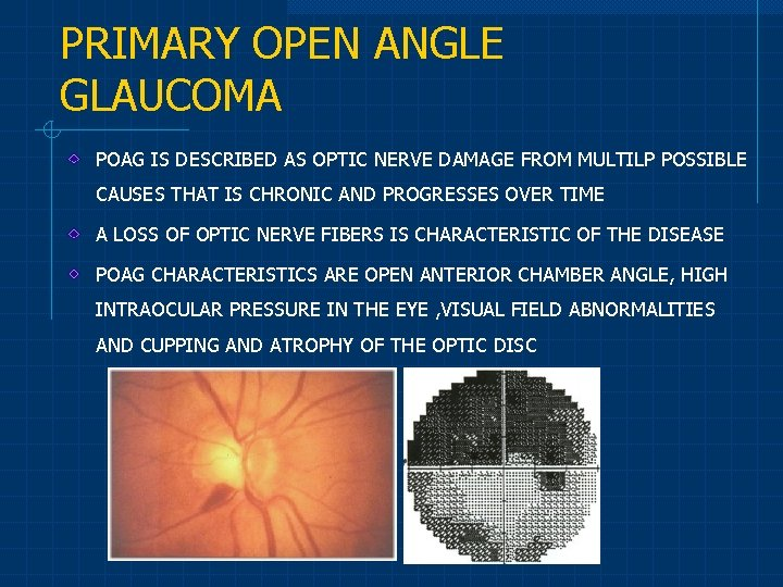 PRIMARY OPEN ANGLE GLAUCOMA POAG IS DESCRIBED AS OPTIC NERVE DAMAGE FROM MULTILP POSSIBLE