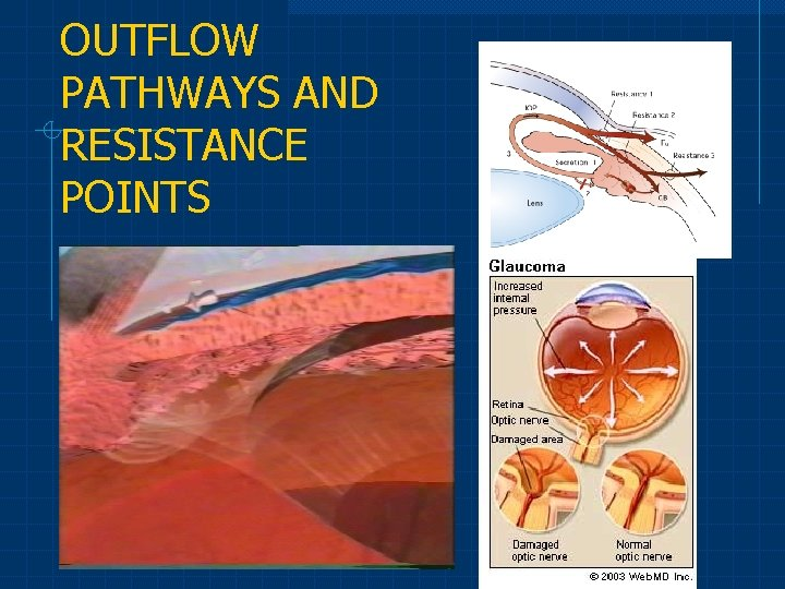 OUTFLOW PATHWAYS AND RESISTANCE POINTS
