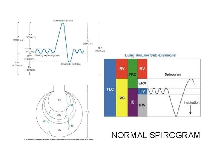 NORMAL SPIROGRAM