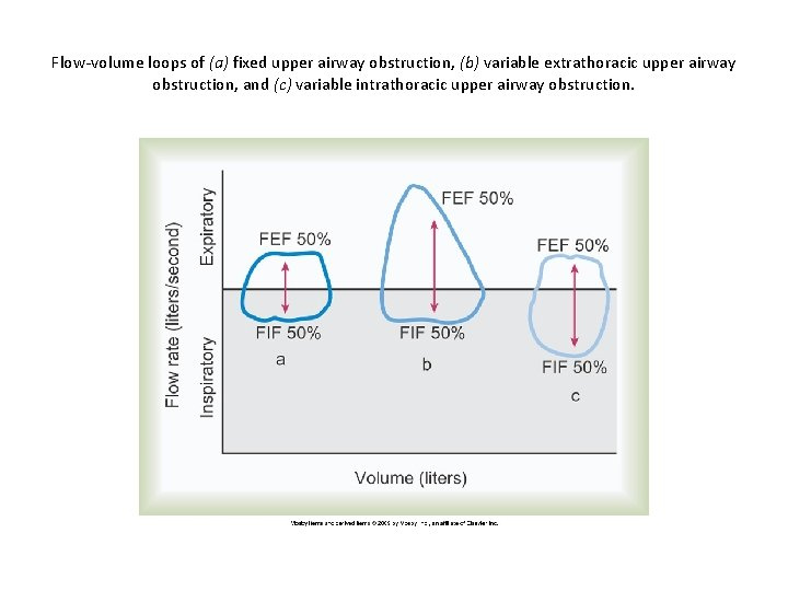 Flow-volume loops of (a) fixed upper airway obstruction, (b) variable extrathoracic upper airway obstruction,