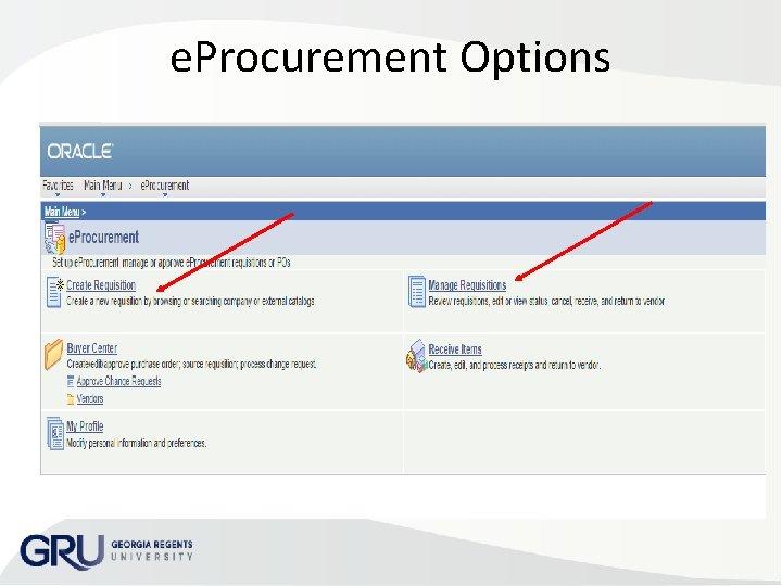 e. Procurement Options