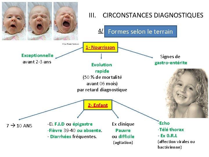 III. CIRCONSTANCES DIAGNOSTIQUES 4/ Formes selon le terrain 1 - Nourrisson Exceptionnelle avant 2