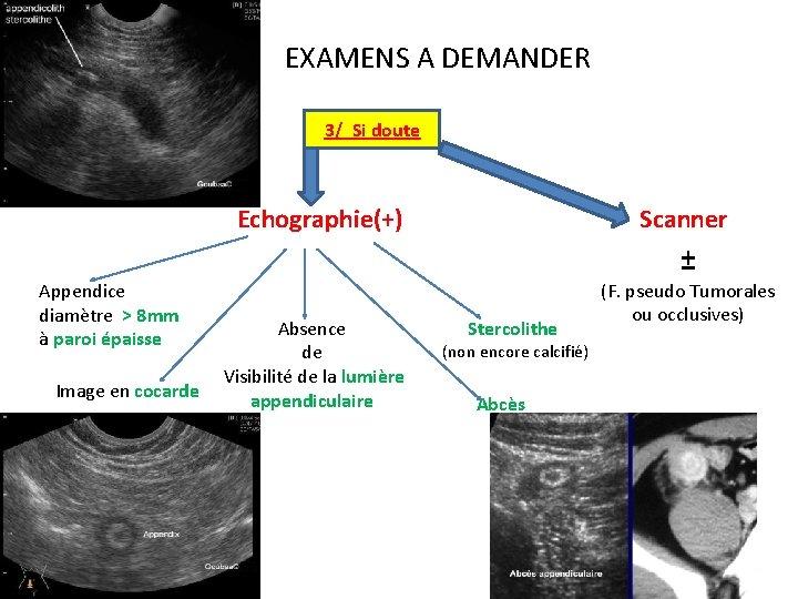 IV. EXAMENS A DEMANDER 3/ Si doute Echographie(+) Appendice diamètre > 8 mm à
