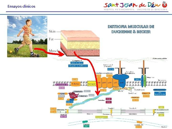 Ensayos clínicos DISTROFIA MUSCULAR DE DUCHENNE & BECKER