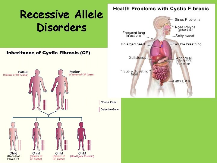 Recessive Allele Disorders