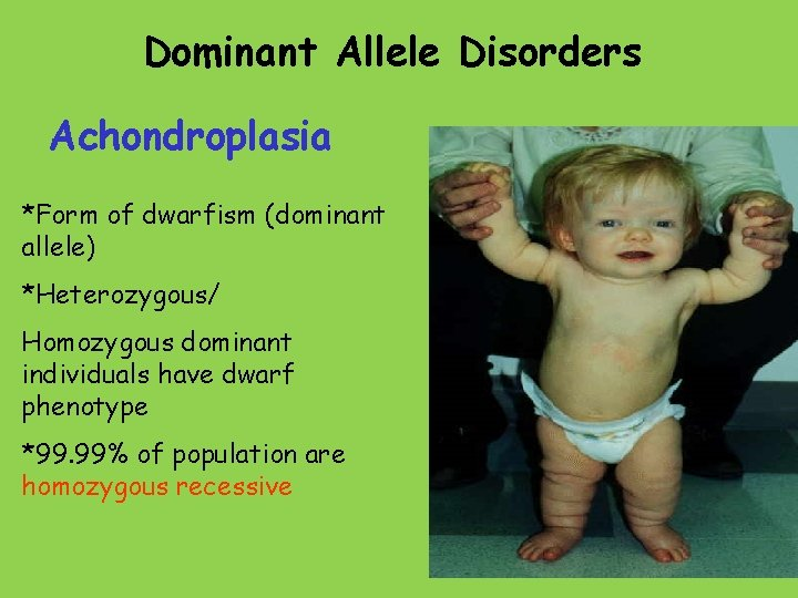 Dominant Allele Disorders Achondroplasia *Form of dwarfism (dominant allele) *Heterozygous/ Homozygous dominant individuals have