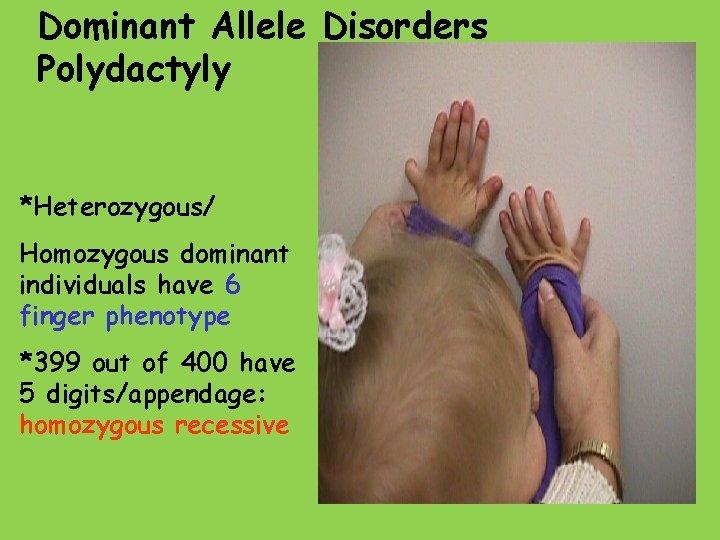 Dominant Allele Disorders Polydactyly *Heterozygous/ Homozygous dominant individuals have 6 finger phenotype *399 out