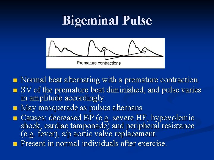 Bigeminal Pulse n n n Normal beat alternating with a premature contraction. SV of