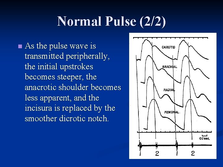 Normal Pulse (2/2) n As the pulse wave is transmitted peripherally, the initial upstrokes