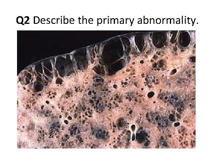Q 2 Describe the primary abnormality.