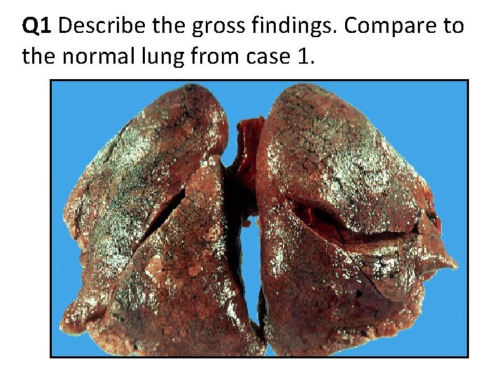 Q 1 Describe the gross findings. Compare to the normal lung from case 1.
