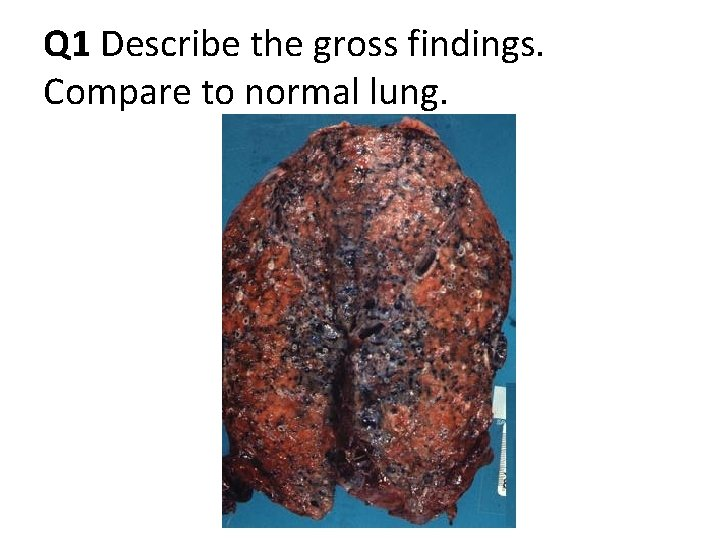 Q 1 Describe the gross findings. Compare to normal lung.
