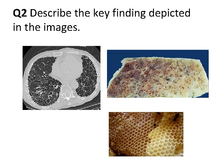 Q 2 Describe the key finding depicted in the images.