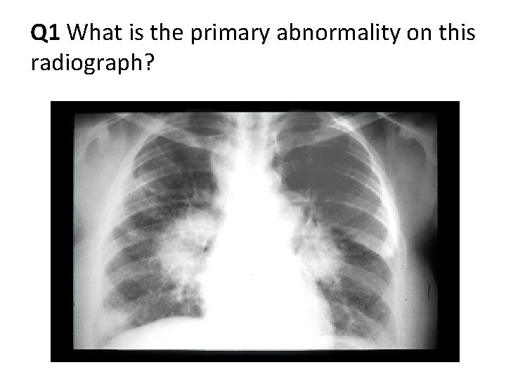 Q 1 What is the primary abnormality on this radiograph?
