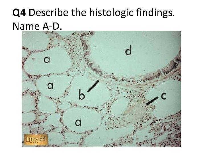 Q 4 Describe the histologic findings. Name A-D.