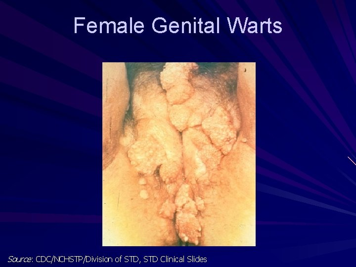 hpv warts left untreated