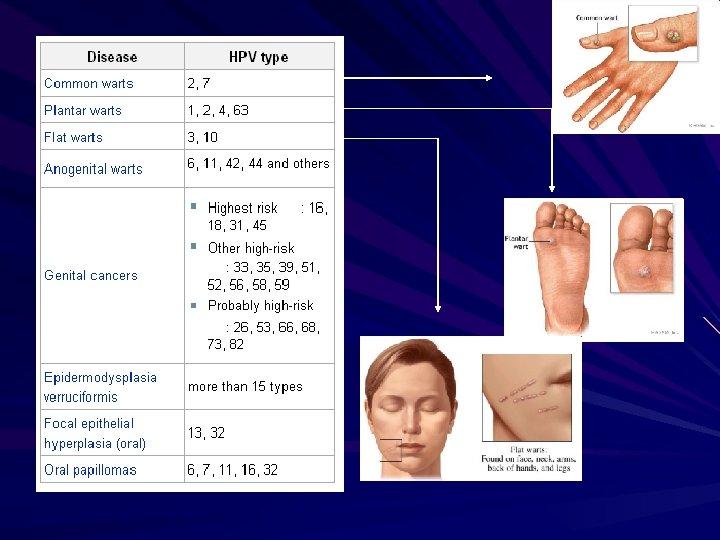 human papillomavirus types anogenital warts)