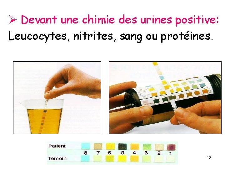 Ø Devant une chimie des urines positive: Leucocytes, nitrites, sang ou protéines. 13