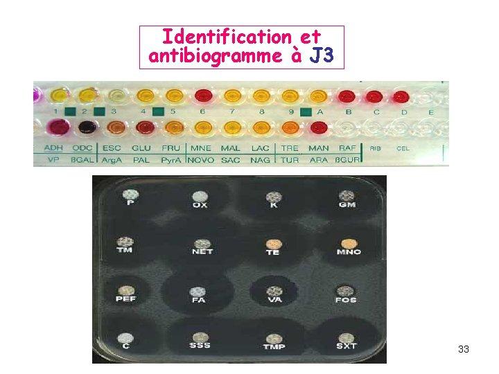 Identification et antibiogramme à J 3 33