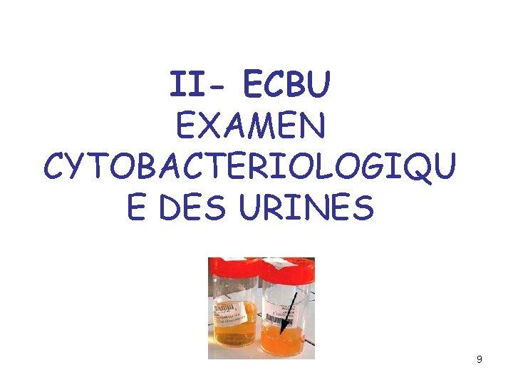 II- ECBU EXAMEN CYTOBACTERIOLOGIQU E DES URINES 9