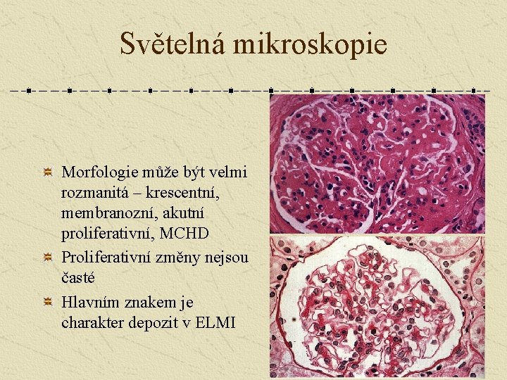 Světelná mikroskopie Morfologie může být velmi rozmanitá – krescentní, membranozní, akutní proliferativní, MCHD Proliferativní
