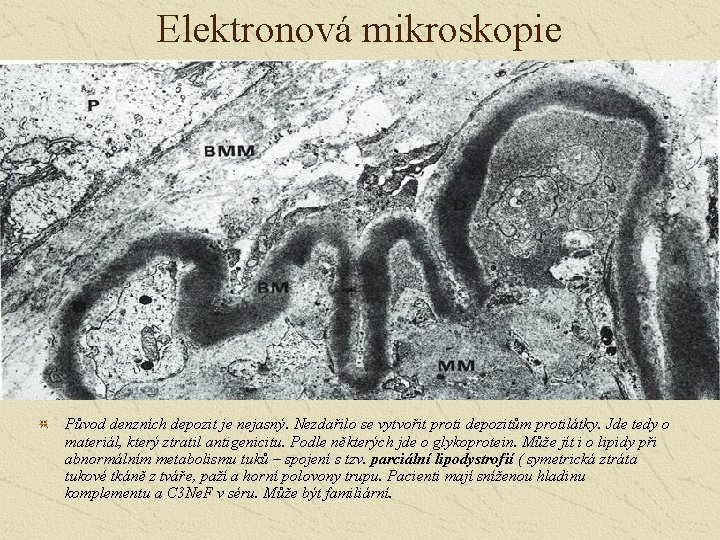 Elektronová mikroskopie Původ denzních depozit je nejasný. Nezdařilo se vytvořit proti depozitům protilátky. Jde