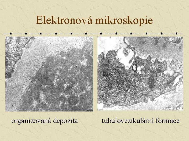 Elektronová mikroskopie organizovaná depozita tubulovezikulární formace